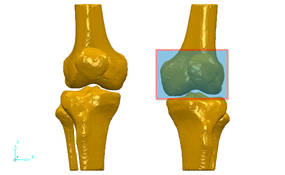 3D data of knee joint